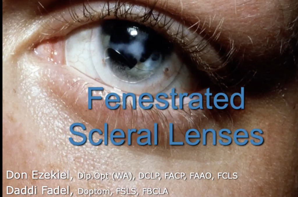 "Watch ""Fenestrated Scleral Lenses"" with Don Ezekiel and Daddi Fadel"